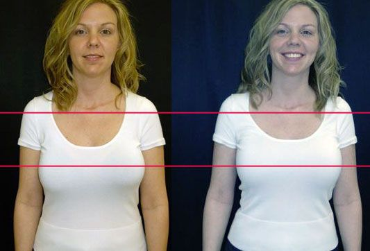 Right Bra Accentuate Your Looks