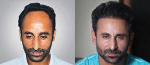 hair transplant in Ludhiana price