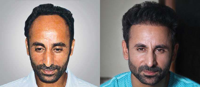 hair transplant in Ludhiana price